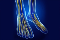 Tarsal Tunnel Syndrome and Nerve Damage