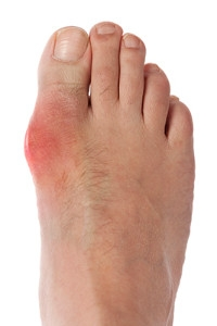 Causes and Symptoms of Gout